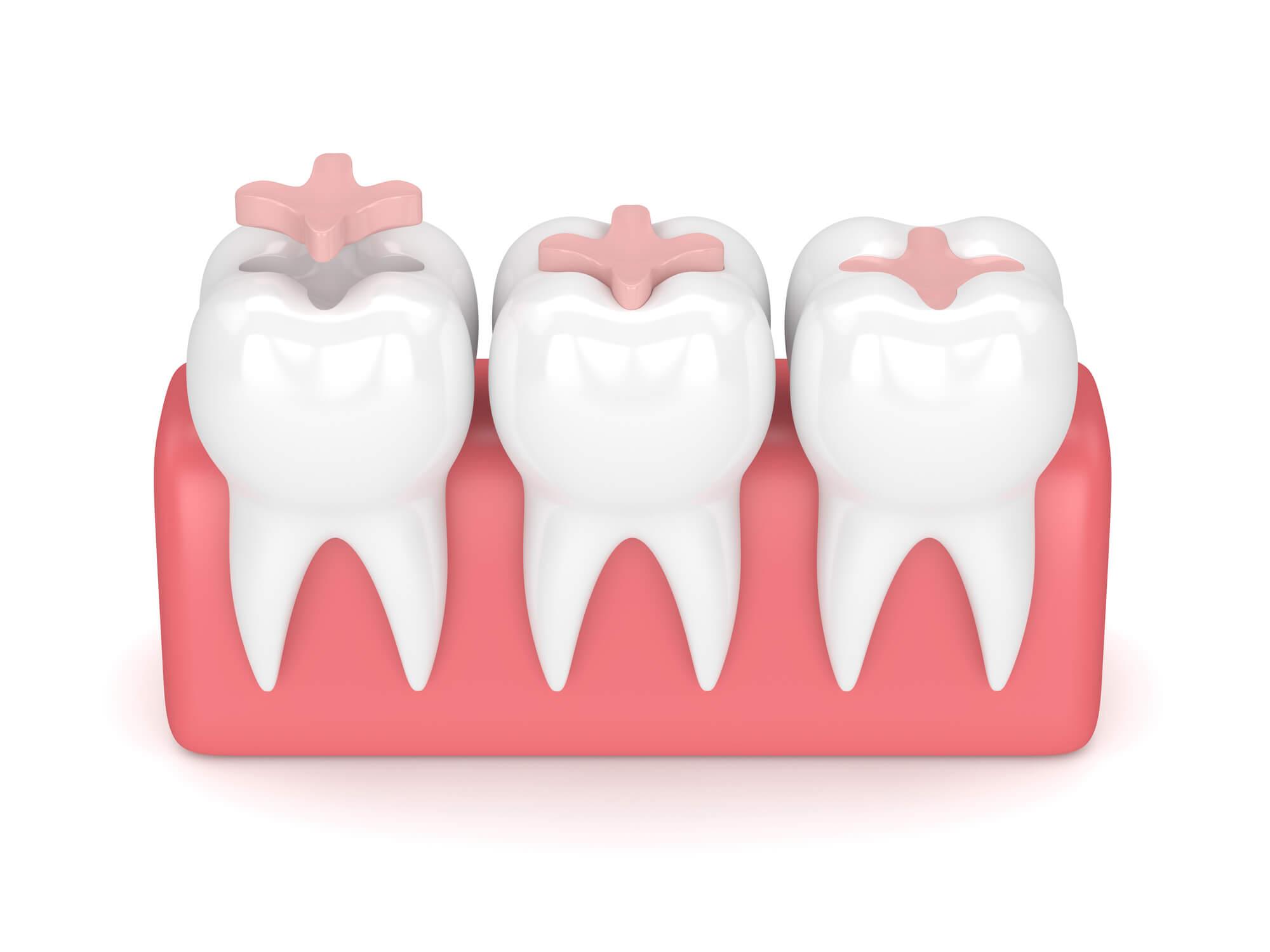 3D model of teeth with dental sealants in Seneca